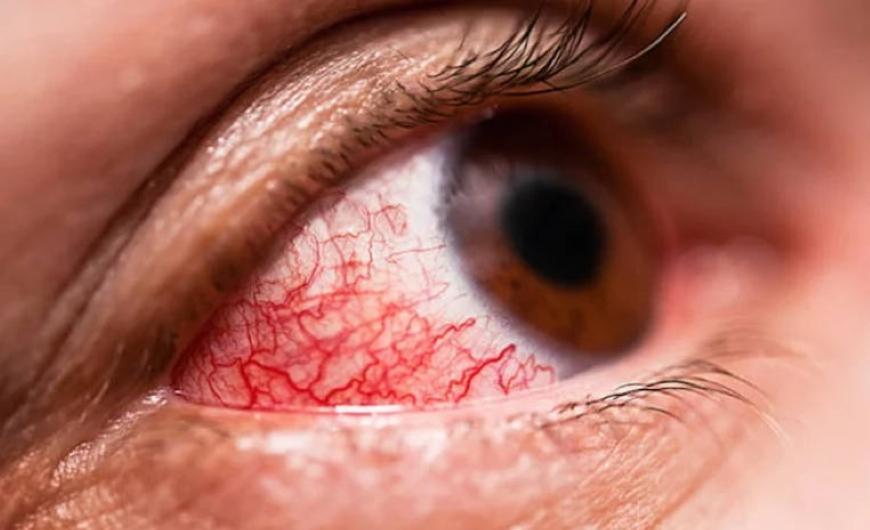 cuidados-para-tus-lentes-de-contacto-opticacliment-ojo-rojo